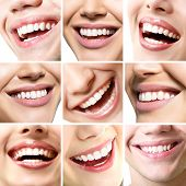 Beautiful smiles set. Perfect wide smiles with great healthy white teeth, over white. Dental care, whitening, stomatology, restoration of teeth, prosthetics, oral hygiene concept. Smiley faces details poster