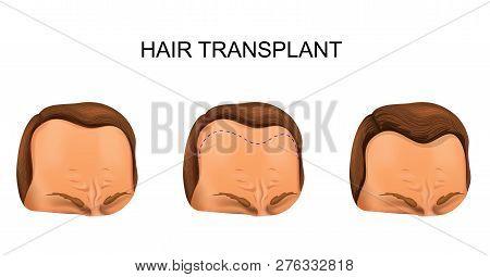 Vector Illustration Of A Hair Transplant. Man.