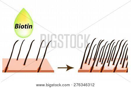 Treatment Of Alopecia. Vitamins Hair. Biotin. Seborrhea Skin And Hair. Dandruff, Seborrheic Dermatit