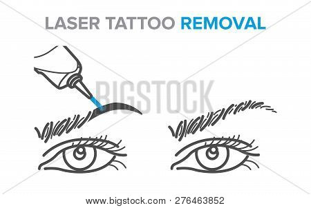 Eyebrow removal procedure, laser tattoo removal icons, microblading poster