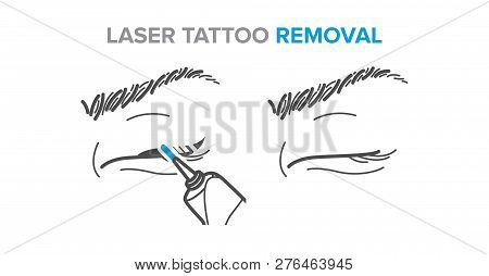Eyeliner removal procedure, laser tattoo removal icons, microblading poster