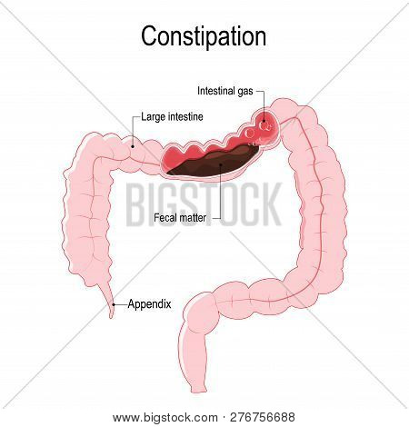 Constipation. Vector Diagram Represent The Human Large Intestine With Fecal Matter And Bowel Gas Bub