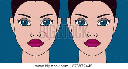 Removal of scars from face, woman with  scar on cheek, laser skin resurfacing, surgical removal of scar. Vector illustration poster
