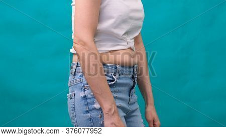 Woman Holds A Fold Of Skin On A Thick Belly, Fat Female Body On A Green Background. Bold Female Wais