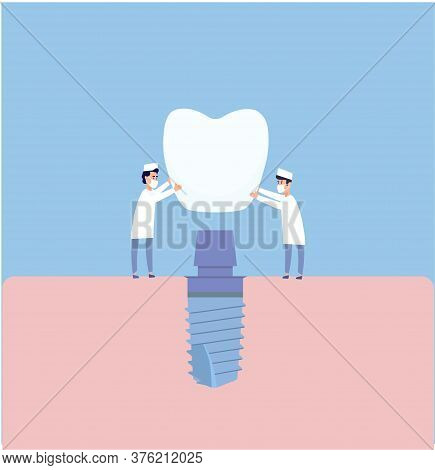 Two Dentists Perform Dental Implantation: Install The Implant On The Abutment. Vector Illustration,