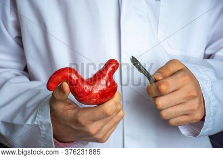 Surgeon Held Scalpel Over Anatomical Model Of Human Stomach, Holding It In His Hand Against Backgrou