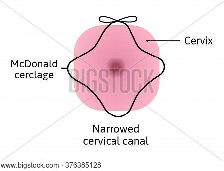 Mcdonald Cerclage Tightening Of Cervix Opening During Pregnancy. Anatomy Of Cervical Canal. Cervix W