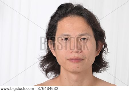 Facial Close Up: Asian Men Aged 35-40 Years With Problematic Skin, Acne Scars, Wrinkles And Dark Spo