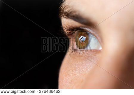 Macro Eye Photo. Keratoconus 3 Degree - Eye Disease, Thinning Of The Cornea In The Form Of A Cone. T