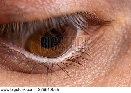 Macro Eye Photo. Keratoconus 4 Degree - Eye Disease, Thinning Of The Cornea In The Form Of A Cone. T