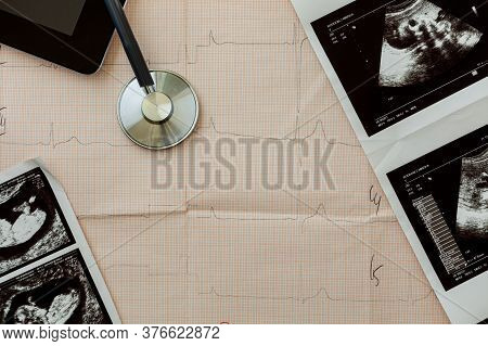 On The Table Of A Gynecologist A Medical Stethoscope And Embryo Picture, Cardiogram Background