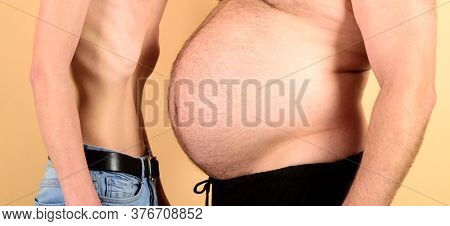 Obese Man Waist Body Fat. Man With Fat And Slim Figure On Yellow Background. Anorexia Vs Fat Problem
