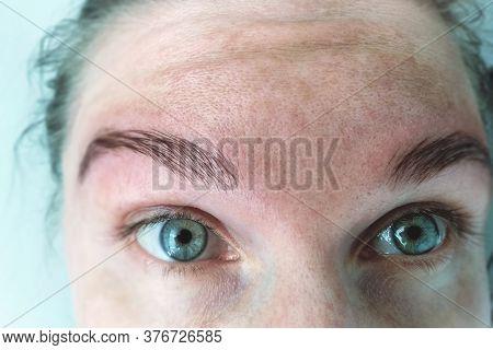 Spot Melasma Pigmentation Facial Treatment On Face Woman. Problem Skincare And Health Concept.