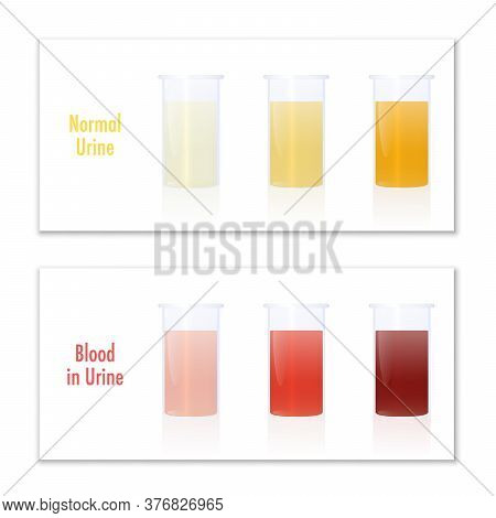 Blood In Urine And Normal Urine In Specimen Cups, As Comparison For Laboratory Examination And Medic