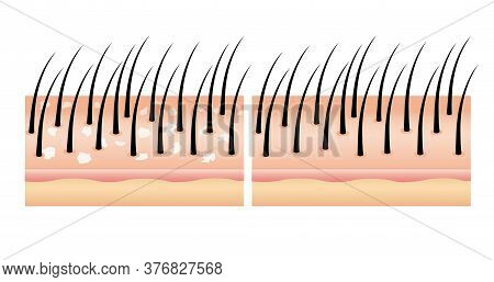 Dandruff On Hair Before And After (vector),hair Scalp. Treatment Of Dandruff On The Scalp. Compare N