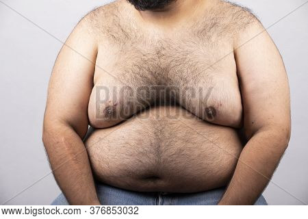 Belly Of Obese People,fat People Have Hairs Along The Body,fat Man With Mustache, Health Concept