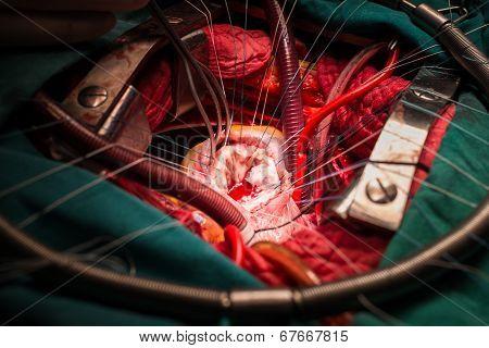 Tricuspid Valve Repair