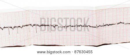 Electrocardiogram (ecg, Ekg) On Paper