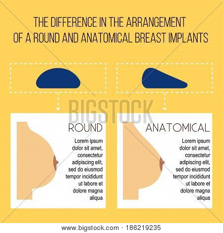 Plastic breast surgery Vector illustration The difference between the installation of round and anatomical breast implants Medical poster in flat design