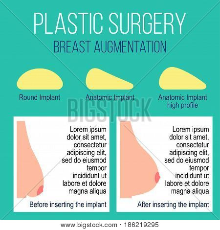 Plastic breast surgery Vector illustration Types of breast implants with description Female breast before and after plastic surgery Flat design