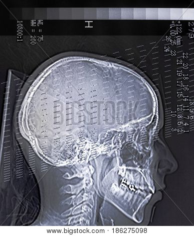 Xray head scan of a person with some data.