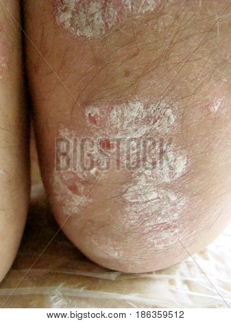 psoriasis is a chronic infectious disease affecting skin.