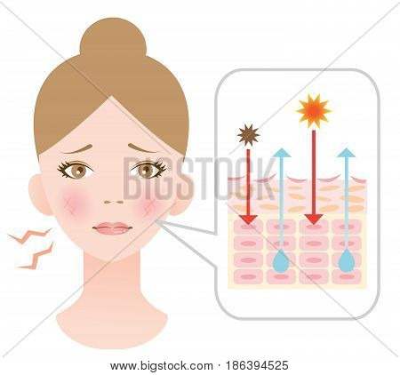 skin damage from sun and pollution. skin dehydration causes depletion of dermis and result in skin damage.