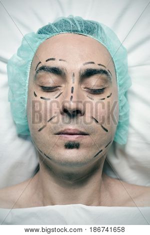 high-angle shot of the head of a young caucasian man who is about to have a plastic surgery, with a medical disposable cap and with surgery lines marked around his eyes, in his nose and in his cheeks