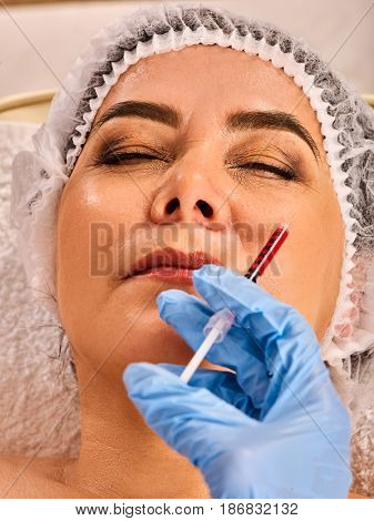 Filler injection female face. Plastic aesthetic facial surgery in beauty clinic. Elderly woman 50-60 years old is proud of her appearance. Doctor medical gloves with syringe injects lips augmentation.