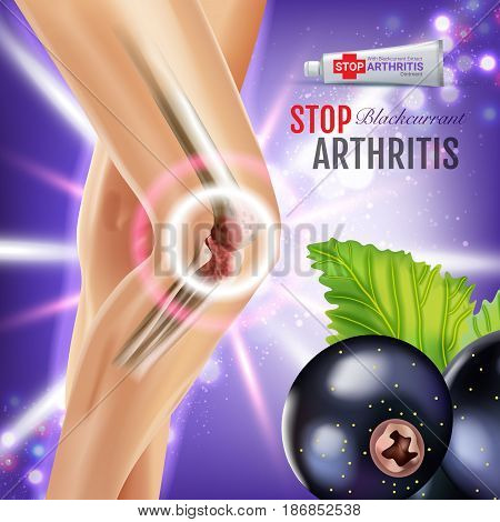 Arthritis Pain Relief Ointment ads. Vector 3d Illustration with Tube cream with blackcurrant extract. Poster with product's package.