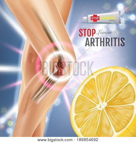 Arthritis Pain Relief Ointment ads. Vector 3d Illustration with Tube cream with lemon extract. Poster with product's package.