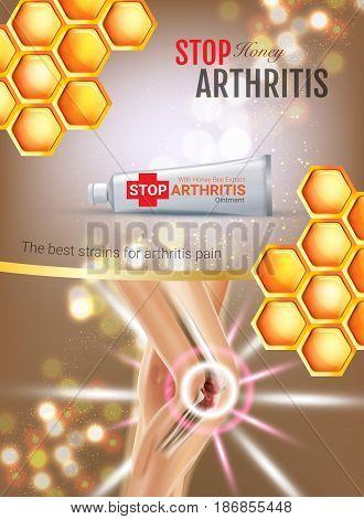 Arthritis Pain Relief Ointment ads. Vector 3d Illustration with Tube cream with honey extract. Vertical poster with product's package.