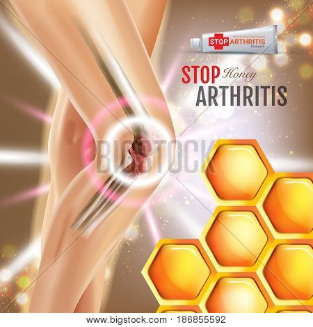 Arthritis Pain Relief Ointment ads. Vector 3d Illustration with Tube cream with honey extract. Poster with product's package.