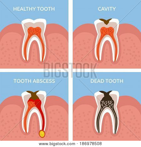Stages of tooth decay. Dental anatomy concept. Vector illustration.