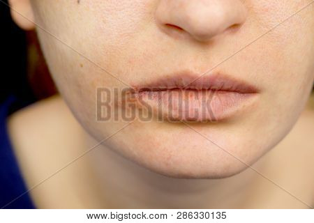 Herpes on the lips: a woman with a cold and the herpes virus is examined by a dermatologist and infectious disease specialist poster