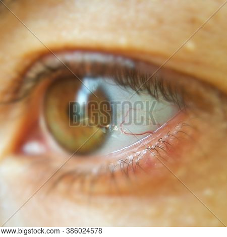 Blood Vessel On The Eyeball. Selective Focus On Blood Vessels. Intraocular Pressure. Bloodshot Eyes.