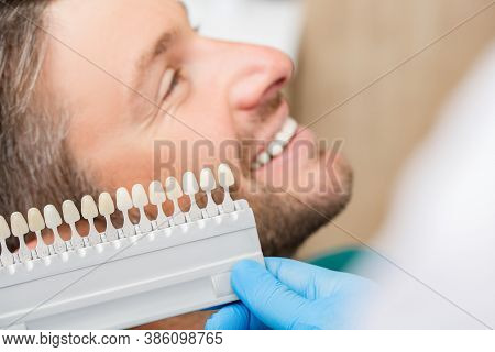 Dentist Uses A Palette Tooth Color Sample To Determine Shade Of Patients Male Teeth. Stomatologist W