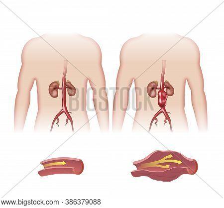 Schematic Sketch Of Abdominal Aortic Aneurysm Artery.