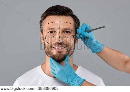 Handsome Man With Pencil Marks On Skin For Cosmetic Surgery, Ready For Operation. Aesthetic Cosmetol