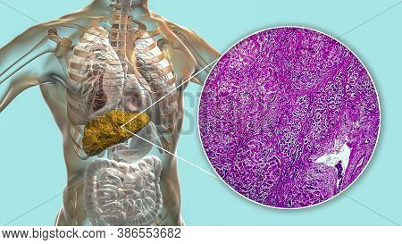 Liver With Cirrhosis Inside Human Body. 3d Illustration And Light Micrograph Of Biliary Cirrhosis