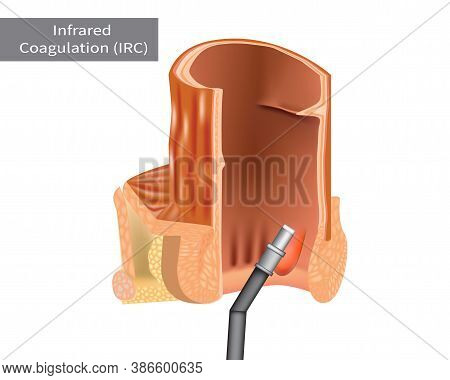 Infrared Coagulation Therapy Irc For Hemorrhoids Treatment