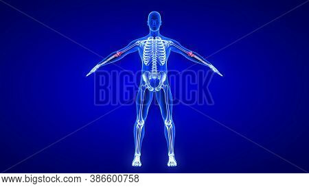 Elbow Pain. Blue Human Anatomy Body 3d Scan Render On Blue Background