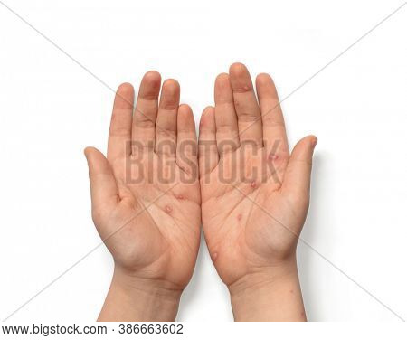Children hands with chickenpox, rash and blisters. Hands with blisters isolated on white background