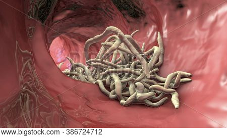 Parasitic Worms In The Lumen Of Intestine, 3d Illustration. Ascaris Lumbricoides And Other Round Wor