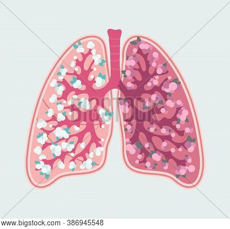 Pneumonia In Lung Of Human. Inflammation Lung - Hand Drawn Illustration.patient-friendly Scheme Of C