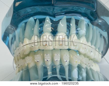 Human jaw or teeth orthodontic dental model with implants dental braces .Dental and orthodontic office presentation tool on white background