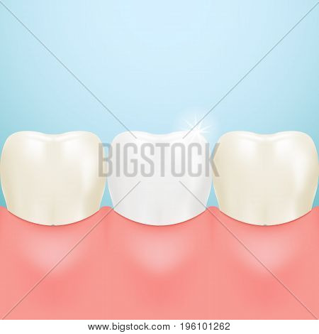 Healthy Tooth, Teeth Whitening Isolated On A Background. Realistic Vector Illustration. Healthcare stomatology and cleaning professional teeth illustration