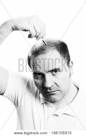 Middle-aged man concerned by hair loss bald baldness alopecia isolated