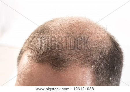 Middle-aged man concerned by hair loss bald baldness alopecia white background poster
