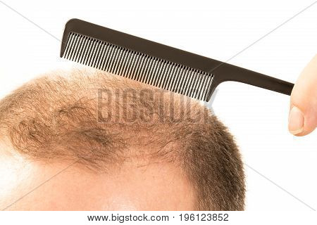 Middle-aged man concerned by hair loss bald baldness alopecia white background